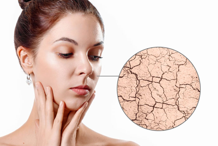 Woman worrying about her damaged skin